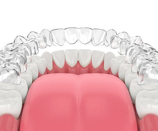 A digital image of a clear Invisalign aligner going on over the bottom arch of teeth