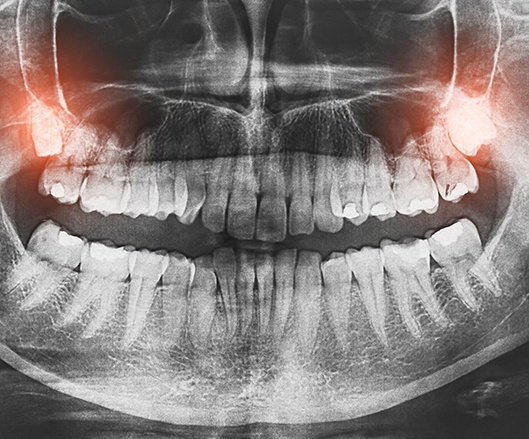 X-ray of smile with wisdom teeth highlighted