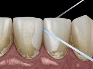 computer model of dental floss removing plaque between teeth