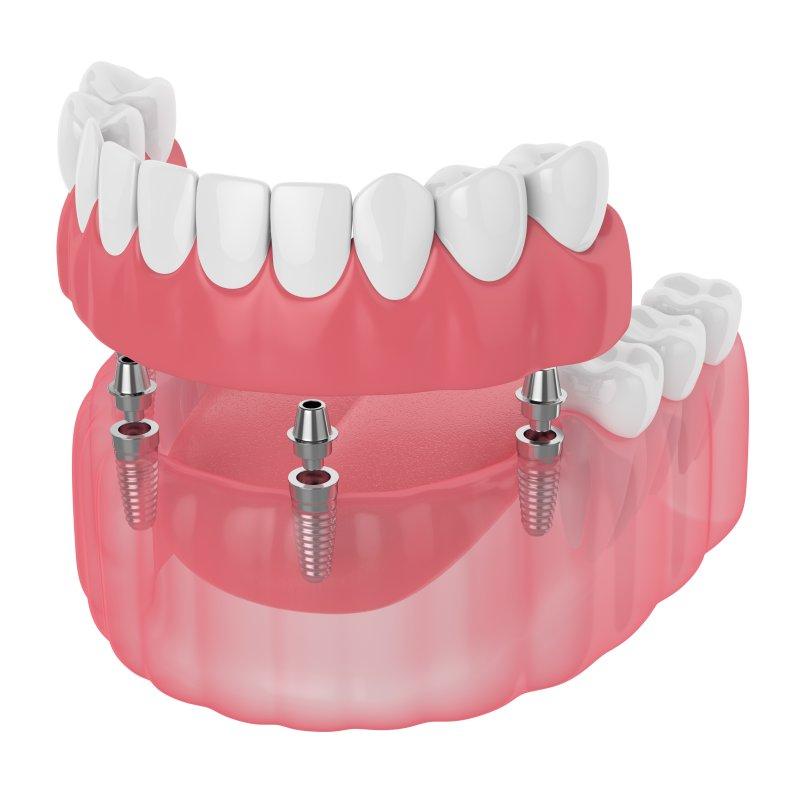 Implant retained denture